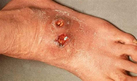 skin ulcer skin ulcer pictures symptoms causes stages treatment prevention diseases pictures