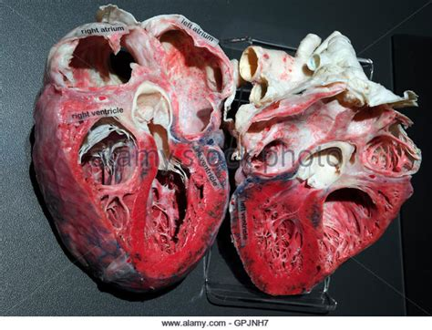 human heart cross section anatomical heart model stock photos anatomical heart