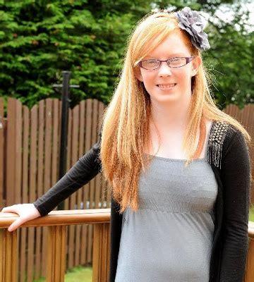 Hair Dryer Tiba Tiba Mati mengidap penyakit langka gadis ini bisa mati jika sisiran