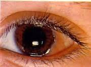 malattie dell orecchio interno malattie degli organi dei sensi patologia terapia occhio