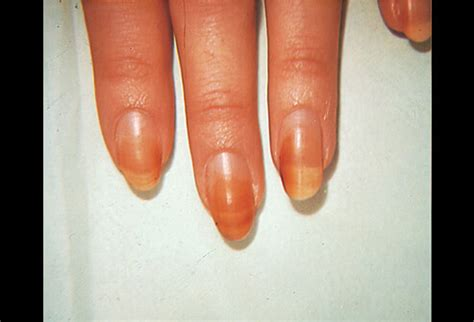 nail bed definition pictures of nail diseases and problems discoloration of