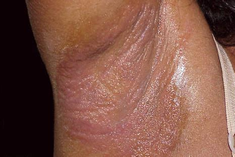 underarm rash causes rash under armpit red painful from hiv stds candida