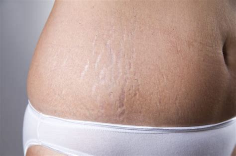 Stretch Marks by Can Toning Up Your Get Rid Of Stretch Marks