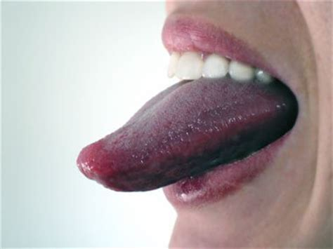 what color should my tongue be 10 hygiene tips for healthy white teeth reader s