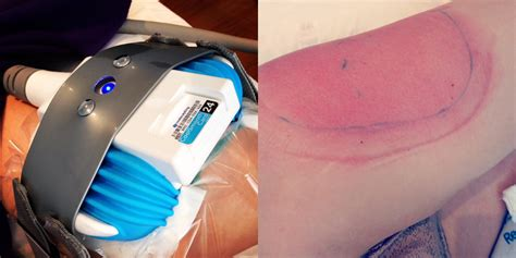 how much does a coolsculpting machine cost freezing your can it really work