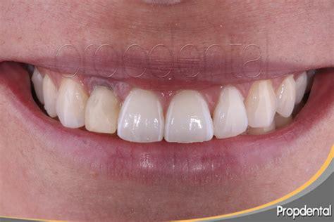 fundas zirconio problemas implantes dentales madrid precio implantes madrid