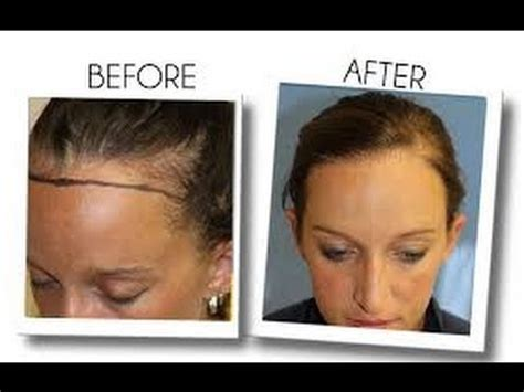 rogaine for women before and after photos womens hair loss treatment minoxidil arganrain