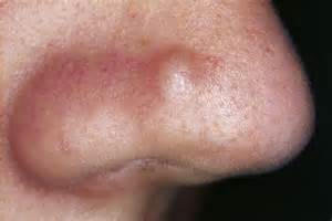 flesh colored bump on nose pimples acne and skin care advice yoderm