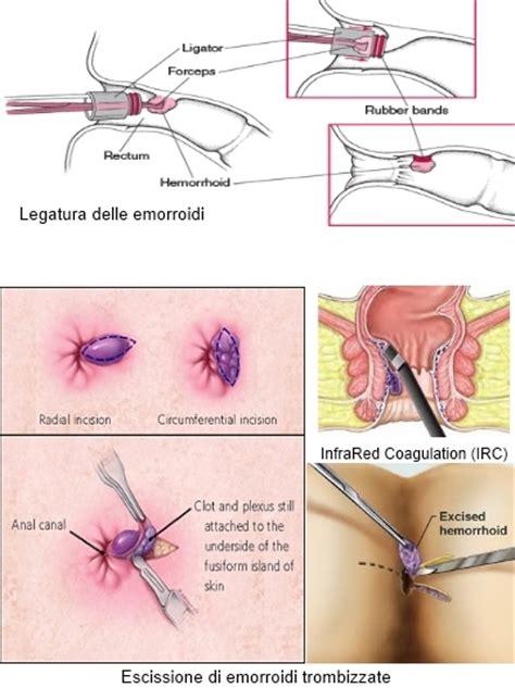 ragadi interne ano come curare emorroidi esterne fare di una mosca