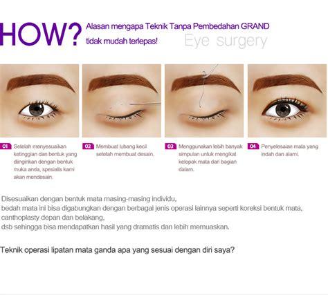 Sulam Lipatan Mata Sulam Eyelid 9 harga operasi mata grand plastic surgery