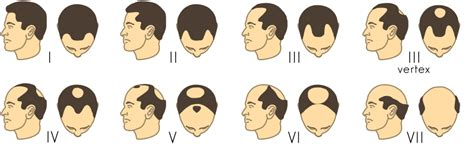 hamilton pattern hair loss hair loss treatments on a budget a scientific approach