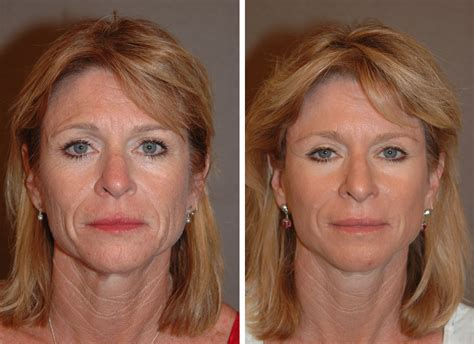 lower face and neck lift mini facelift san diego changes rapid facelift quick