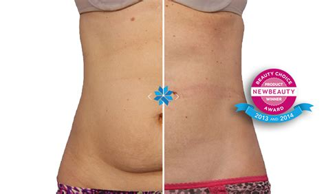 Bust With Coolsculpting by Coolsculpting Ameri Cal Weight Clinic