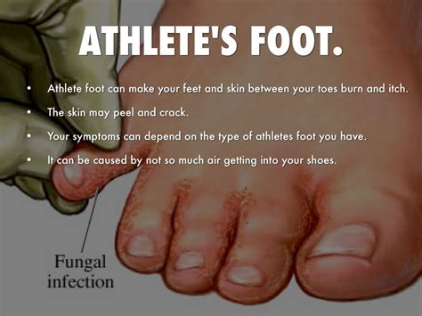 kill athletes foot in shoes how to get athletes foot out of shoes 28 images 1000