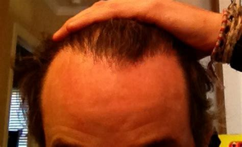 how to if my is how to fix my uneven hairline and estimated cost