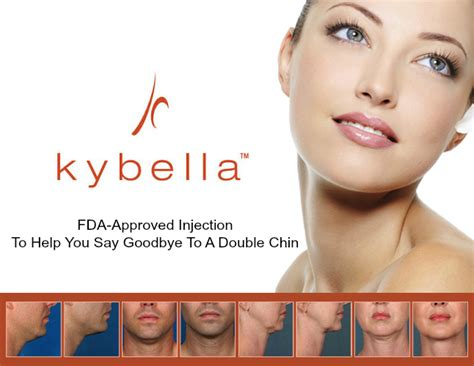 kybella is it right for you find out today