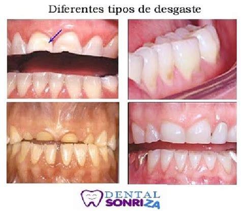 cuanto tarda en salir una muela juicio 5 3 odontolog 237 a primitiva introducci 243 n a la odontolog 237 a