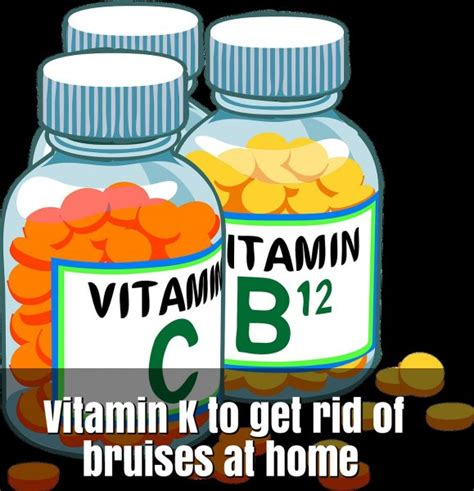21 effective remedies to get rid of bruises at home