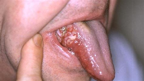 mouth cancer symptoms diagnosis and treatment