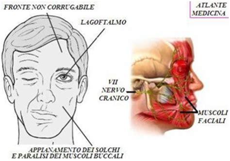 orecchio interno gonfio paralisi otogena nervo faciale