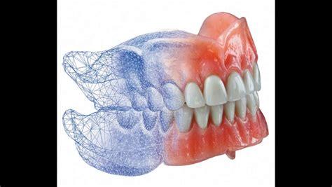 imagenes de cubetas odontologicas dentista en barcelona odontolog 237 a digital con impresoras