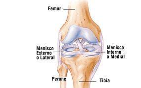 menisco interno rotura de menisco y meniscitis 191 qu 233 es fisioterapia
