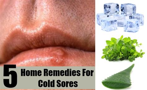 5 home remedies for cold sores treatments cure