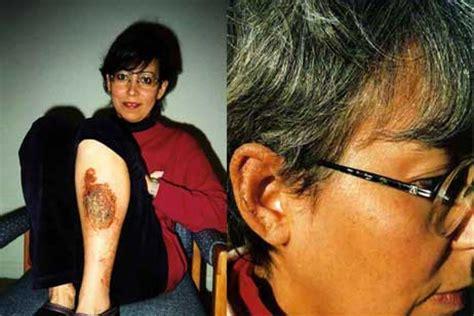 How Do Detox Bumps Last by Eczema Healing An Effective Healing Approach For