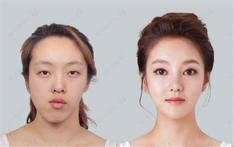 kibbe short nose big eyes plastic surgery in korea id hospital asia beauty center