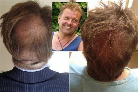 coronation street stars have hair transplant coronation street hair transplants coronation street