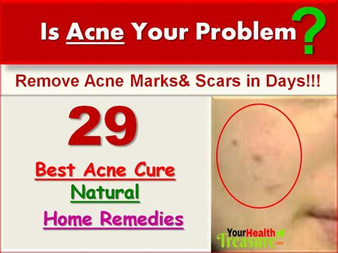 top three homeopathic remedies for acne homeopathic acne 29 natural home remedies for acne very effective your