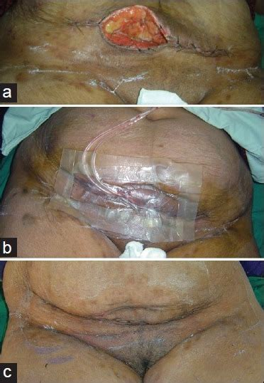 wounding section 20 a dehiscence of abdominal wall wound after caesarian