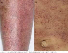 idiopathic thrombocytopenic purpura itp symptoms and