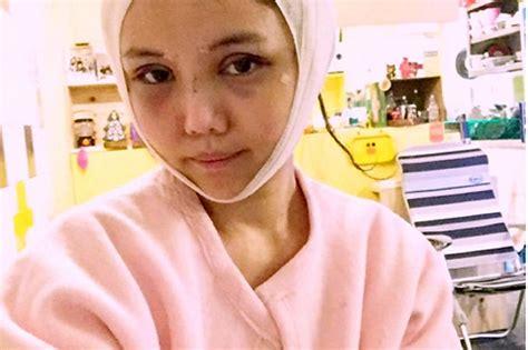 blogger qiuqiu plastic surgery singapore blogger has fifth plastic surgery op 9 months