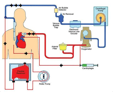Essay On Pulmonary Circulation by Mini Cardiopulmonary Bypass Anesthetic Considerations
