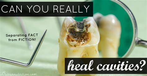 dental truths and myths can you really heal cavities and