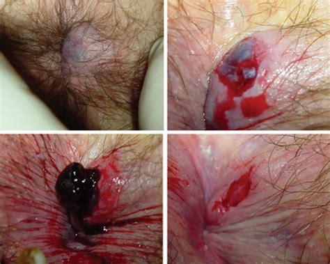 hemoroide interne symptomes carabiens le forum
