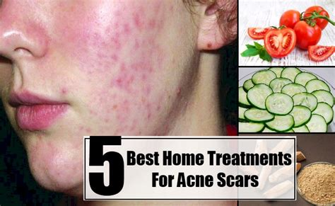 5 best home treatments for acne scars care health