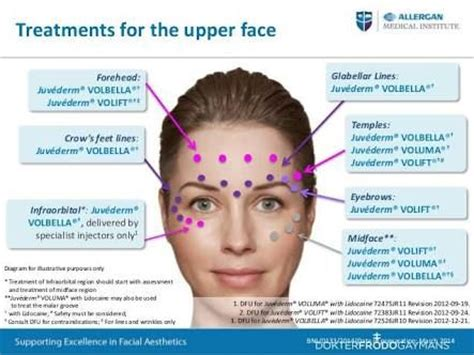 botox injection for migraines diagram image result for botox injection diagram botox and