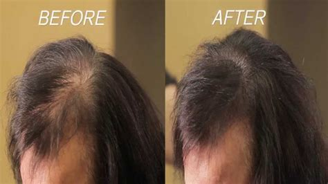hair fill in pieces for thinning hair hair fillers for human hair filler women s wigs ebay