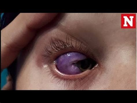 eyeball tattoo removal eyeball leaves canadian model partially