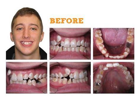 dentist cork dental care  month smiles braces