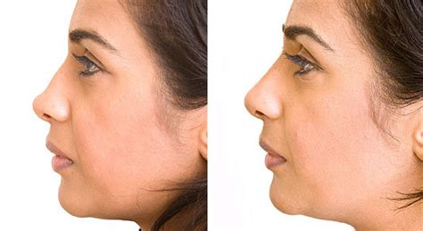 nose shaper before and after non surgical nose job harley street nose fillers nose