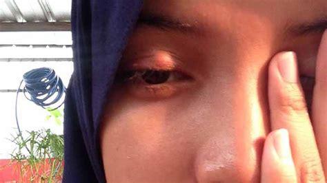 Obat Mata Bintitan Alami 8 cara mengobati mata bintitan secara alami dan aman