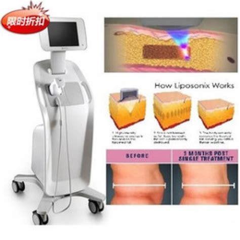 Mesin Hifu liposonix slimming alat penghilang benjolan lemak di tubuh