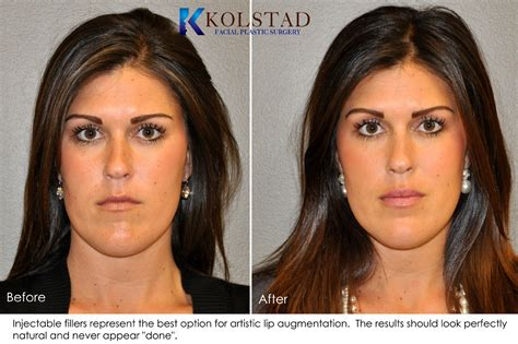 photo gallery before and after cosmetic surgeon in the lip augmentation before after gallery dr kolstad