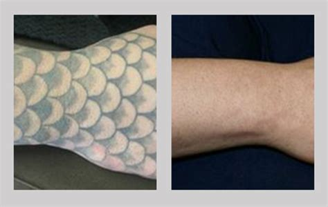 tattoo removal what to expect laser removal reno esteem spa