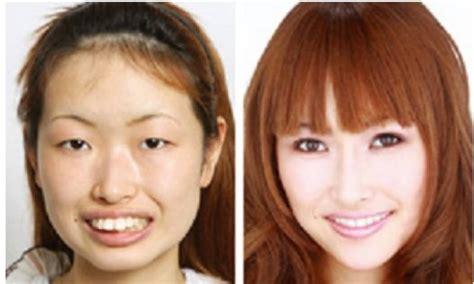 korian si鑒e social chirurgia estetica corea sud 1 dago fotogallery