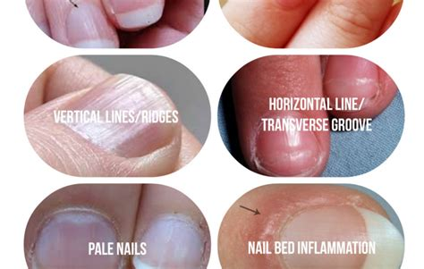 healthy nail beds what your fingernails are trying to tell you about your
