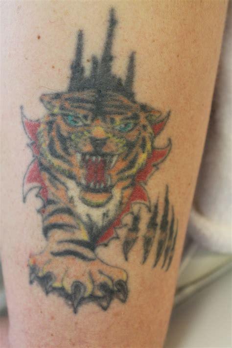 fresh start laser tattoo removal removal fresh start skincare laser